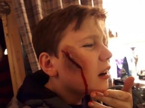 2018 Nov Samuel Party scar 1 - Copy
